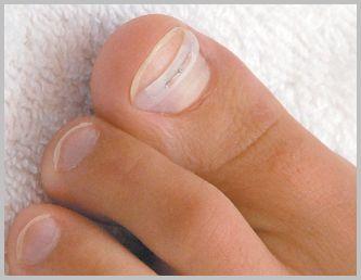 Лечение пластинами вросшего ногтя
