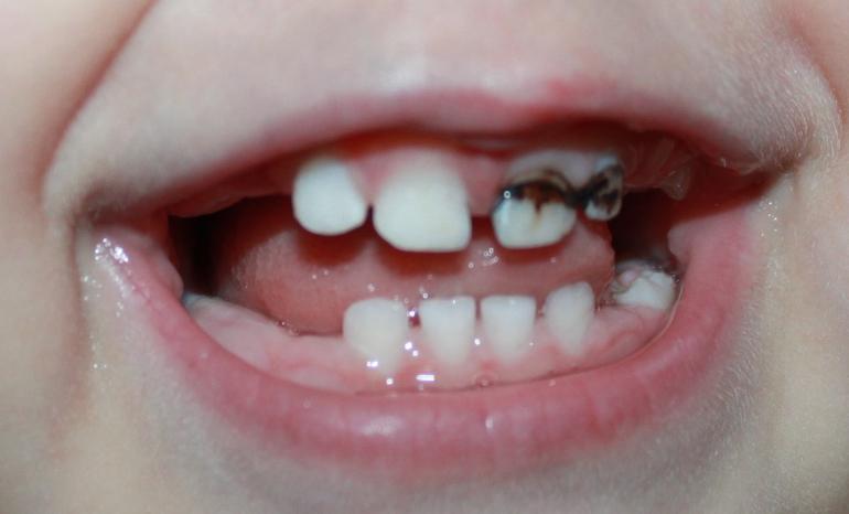 Как и когда растут зубы