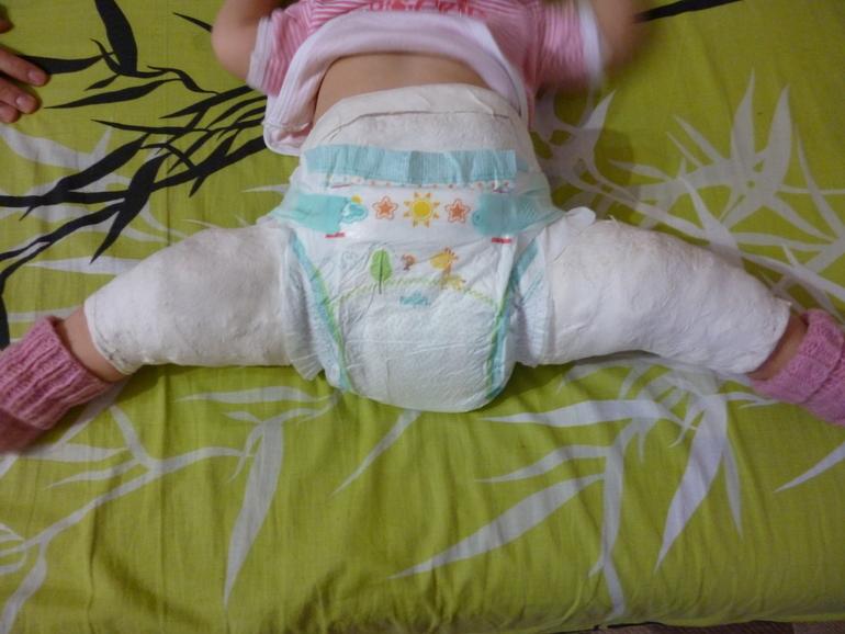 Ребенок в гипсе что одевать
