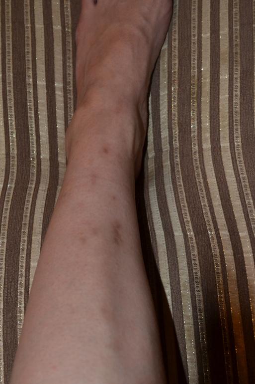 Как избавится от шрама на ноге в домашних условиях - Красное пятно на ноге чешется - Вопрос дерматологу - 03 Онлайн