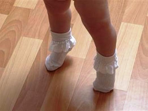 Если ребенок ходит только на носочках что делать