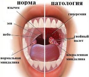 запах железа изо рта у взрослого причины