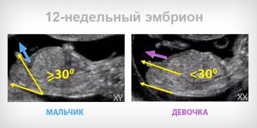 Беременность 12 недель фото узи пол ребенка фото