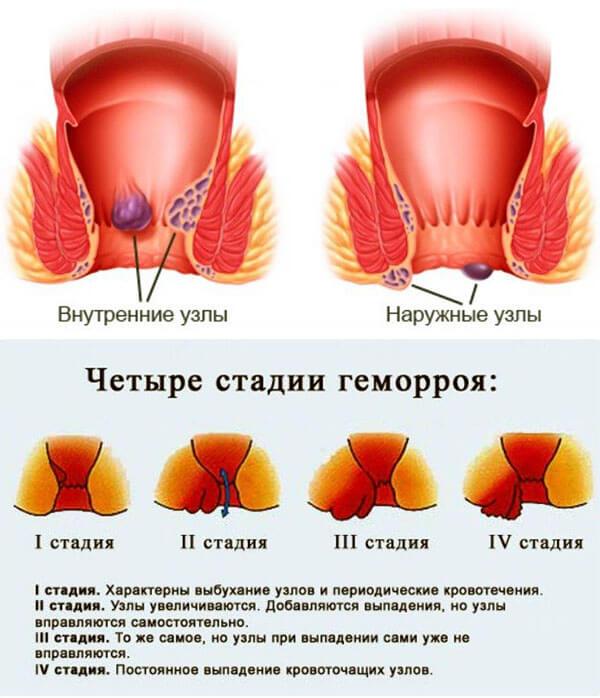 голубитокс от геморроя