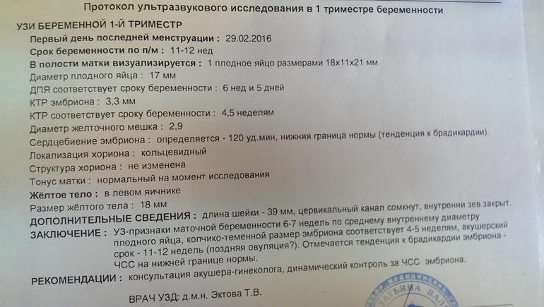 В левой артерии ир-0,67, пи-1, почему квартиры россиян станут меньше, но дороже.