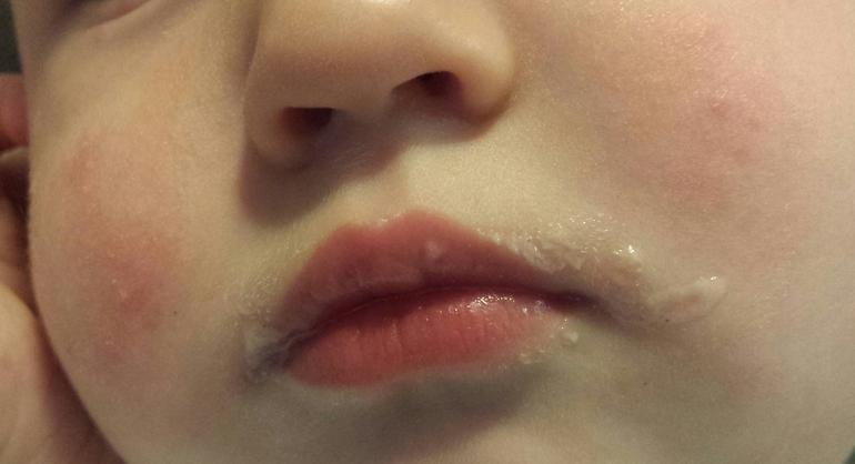 Проблемная кожа на лице уход
