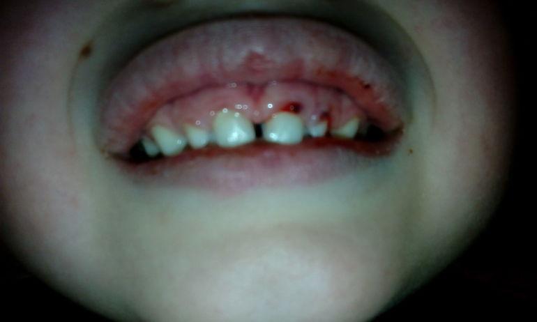 Воспалена верхняя десна у детей фото
