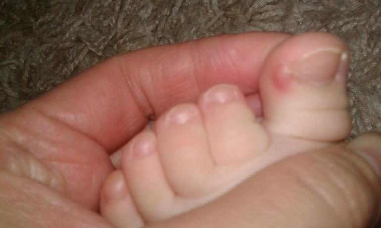 Почему сходят ногти на больших пальцах ног